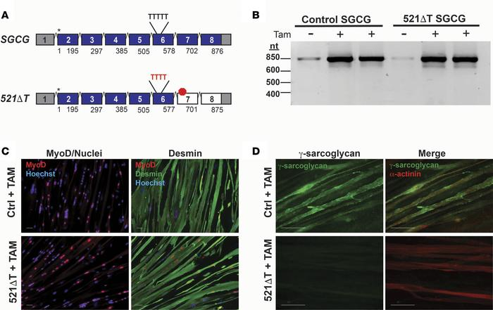 SGCG mRNA and protein expression in fibroblasts reprogrammed into the m...