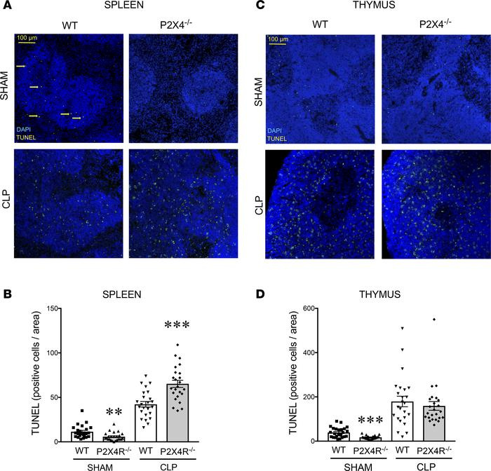 P2X4Rs protect against sepsis-induced apoptosis in the spleen. Apoptosis...