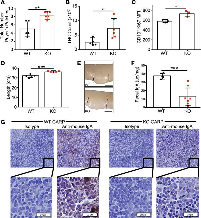 B cell–specific Lrrc32–/– mice have Peyer's patch B cell hyperplasia and...